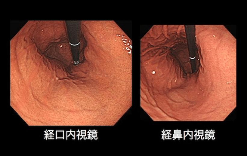 経口・経鼻内視鏡胃腸内部画像
