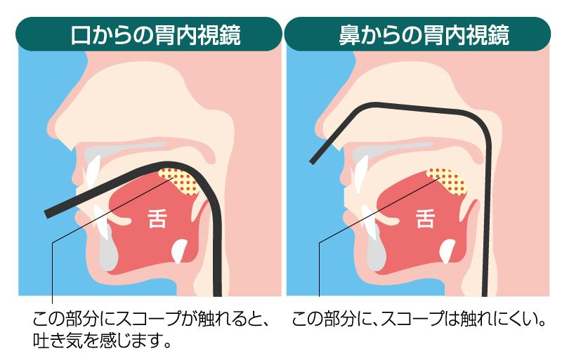 経口・経鼻内視鏡断面図